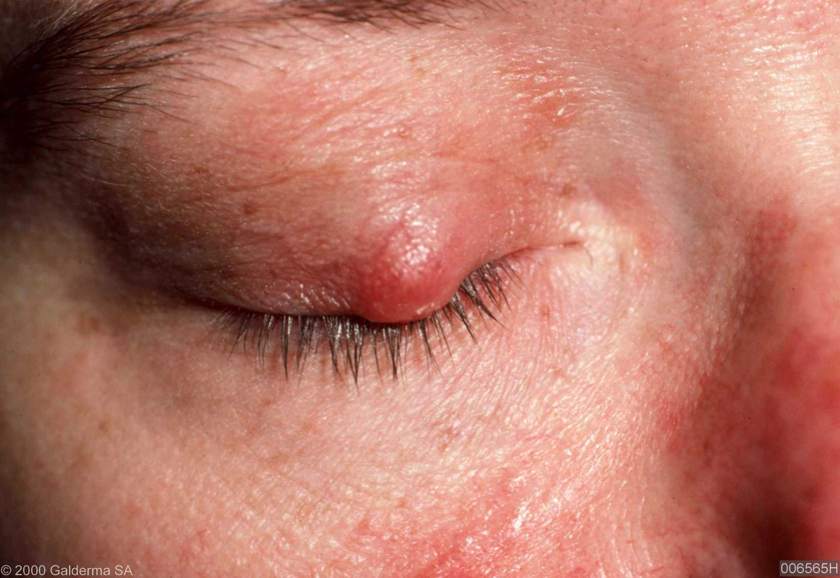 Ophthalmo-Rosacea – Rosacea Blog